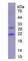 CSF3R / CD114 Protein - Recombinant Colony Stimulating Factor Receptor, Granulocyte By SDS-PAGE