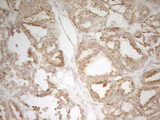 IHC of paraffin-embedded Human thyroid tissue using anti-MRPL15 mouse monoclonal antibody. (Heat-induced epitope retrieval by 1 mM EDTA in 10mM Tris, pH8.5, 120°C for 3min).
