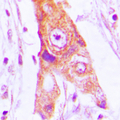 Immunohistochemical analysis of MRPL46 staining in human lung cancer formalin fixed paraffin embedded tissue section. The section was pre-treated using heat mediated antigen retrieval with sodium citrate buffer (pH 6.0). The section was then incubated with the antibody at room temperature and detected using an HRP conjugated compact polymer system. DAB was used as the chromogen. The section was then counterstained with hematoxylin and mounted with DPX.