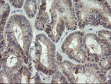 IHC of paraffin-embedded Adenocarcinoma of Human endometrium tissue using anti-MRPS34 mouse monoclonal antibody. (Heat-induced epitope retrieval by 10mM citric buffer, pH6.0, 120°C for 3min).