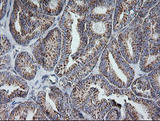 IHC of paraffin-embedded Carcinoma of Human thyroid tissue using anti-MRPS34 mouse monoclonal antibody.
