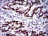 IHC of paraffin-embedded rectum cancer tissues using MSH6 mouse monoclonal antibody with DAB staining.