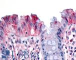 Anti-MST1R / RON antibody IHC of human colon, surface epithelium. Immunohistochemistry of formalin-fixed, paraffin-embedded tissue after heat-induced antigen retrieval.