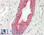 Human Lung, Respiratory Epithelium: Formalin-Fixed, Paraffin-Embedded (FFPE)