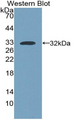 MYH7 Antibody - Western Blot; Sample: Recombinant protein.