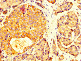 Immunohistochemistry image at a dilution of 1:200 and staining in paraffin-embedded human pancreatic tissue performed on a Leica BondTM system. After dewaxing and hydration, antigen retrieval was mediated by high pressure in a citrate buffer (pH 6.0) . Section was blocked with 10% normal goat serum 30min at RT. Then primary antibody (1% BSA) was incubated at 4 °C overnight. The primary is detected by a biotinylated secondary antibody and visualized using an HRP conjugated SP system.