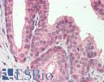 Human, Prostate: Formalin-Fixed Paraffin-Embedded (FFPE).  This image was taken for the unconjugated form of this product. Other forms have not been tested.