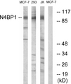 N4BP1 Antibody - Western blot analysis of lysates from MCF-7 and Jurkat/293 cells, using N4BP1 Antibody. The lane on the right is blocked with the synthesized peptide.