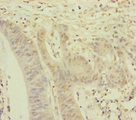 NAA25 Antibody - Immunohistochemistry of paraffin-embedded human colon cancer at dilution of 1:100