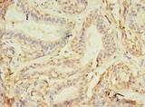 NAIF1 Antibody - Immunohistochemistry of paraffin-embedded human breast cancer using antibody at dilution of 1:100.
