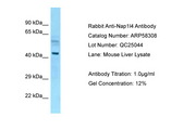 NAP1L4 Antibody -  This image was taken for the unconjugated form of this product. Other forms have not been tested.