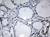 NBN / Nibrin Antibody - IHC of paraffin-embedded Human thyroid tissue using anti-NBN mouse monoclonal antibody.