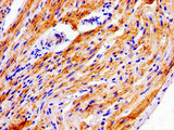 Immunohistochemistry image of paraffin-embedded human heart tissue at a dilution of 1:100