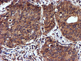 IHC of paraffin-embedded Carcinoma of Human lung tissue using anti-C2orf56 mouse monoclonal antibody.