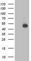 HEK293T cells were transfected with the pCMV6-ENTRY control (Left lane) or pCMV6-ENTRY C2orf56 (Right lane) cDNA for 48 hrs and lysed. Equivalent amounts of cell lysates (5 ug per lane) were separated by SDS-PAGE and immunoblotted with anti-C2orf56.