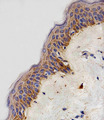 Immunohistochemical of paraffin-embedded H. skin section using NDUFB4 Antibody. Antibody was diluted at 1:100 dilution. A peroxidase-conjugated goat anti-rabbit IgG at 1:400 dilution was used as the secondary antibody, followed by DAB staining.