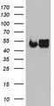 NDUFS2 Antibody - HEK293T cells were transfected with the pCMV6-ENTRY control (Left lane) or pCMV6-ENTRY NDUFS2 (Right lane) cDNA for 48 hrs and lysed. Equivalent amounts of cell lysates (5 ug per lane) were separated by SDS-PAGE and immunoblotted with anti-NDUFS2.