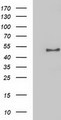 HEK293T cells were transfected with the pCMV6-ENTRY control (Left lane) or pCMV6-ENTRY NECAB1 (Right lane) cDNA for 48 hrs and lysed. Equivalent amounts of cell lysates (5 ug per lane) were separated by SDS-PAGE and immunoblotted with anti-NECAB1.