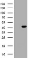 NEU1 / NEU Antibody - HEK293T cells were transfected with the pCMV6-ENTRY control (Left lane) or pCMV6-ENTRY NEU1 (Right lane) cDNA for 48 hrs and lysed. Equivalent amounts of cell lysates (5 ug per lane) were separated by SDS-PAGE and immunoblotted with anti-NEU1.