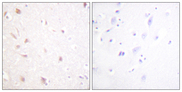 Immunohistochemistry analysis of paraffin-embedded human brain tissue, using NIFK Antibody. The picture on the right is blocked with the synthesized peptide.