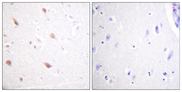 Immunohistochemistry analysis of paraffin-embedded human brain, using NIFK (Phospho-Thr234) Antibody. The picture on the right is blocked with the phospho peptide.