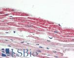 Anti-NKX2-5 antibody IHC staining of human heart. Immunohistochemistry of formalin-fixed, paraffin-embedded tissue after heat-induced antigen retrieval.