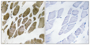 Immunohistochemistry analysis of paraffin-embedded human skeletal muscle tissue, using NMU Antibody. The picture on the right is blocked with the synthesized peptide.