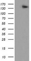NNA1 / AGTPBP1 Antibody - HEK293T cells were transfected with the pCMV6-ENTRY control (Left lane) or pCMV6-ENTRY AGTPBP1 (Right lane) cDNA for 48 hrs and lysed. Equivalent amounts of cell lysates (5 ug per lane) were separated by SDS-PAGE and immunoblotted with anti-AGTPBP1.