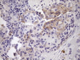 IHC of paraffin-embedded Adenocarcinoma of Human breast tissue using anti-NOBOX mouse monoclonal antibody. (Heat-induced epitope retrieval by Tris-EDTA, pH8.0)(1:150).