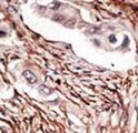 NOTCH3 Antibody - Formalin-fixed and paraffin-embedded human cancer tissue reacted with the primary antibody, which was peroxidase-conjugated to the secondary antibody, followed by DAB staining. This data demonstrates the use of this antibody for immunohistochemistry; clinical relevance has not been evaluated. BC = breast carcinoma; HC = hepatocarcinoma.