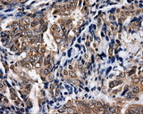NPR3 Antibody - IHC of paraffin-embedded Adenocarcinoma of ovary tissue using anti-NPR3 mouse monoclonal antibody. (Dilution 1:50).