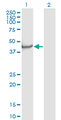 NPTX1 Antibody - Western Blot analysis of NPTX1 expression in transfected 293T cell line by NPTX1 monoclonal antibody (M06), clone 7E6.Lane 1: NPTX1 transfected lysate (Predicted MW: 47.52 KDa).Lane 2: Non-transfected lysate.