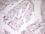 IHC of paraffin-embedded Carcinoma of Human bladder tissue using anti-NR2C2 mouse monoclonal antibody. (Heat-induced epitope retrieval by 1 mM EDTA in 10mM Tris, pH8.5, 120°C for 3min).