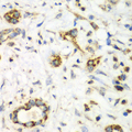 NRBF2 Antibody - Immunohistochemistry of paraffin-embedded human liver cancer using NRBF2 antibody at dilution of 1:100 (40x lens).