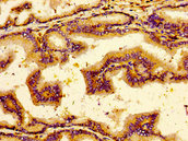 NTSR2 / NTR2 Antibody - Immunohistochemistry image of paraffin-embedded human prostate tissue at a dilution of 1:100
