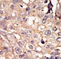 NUAK1 / ARK5 Antibody - Formalin-fixed and paraffin-embedded human cancer tissue reacted with the primary antibody, which was peroxidase-conjugated to the secondary antibody, followed by AEC staining. This data demonstrates the use of this antibody for immunohistochemistry; clinical relevance has not been evaluated. BC = breast carcinoma; HC = hepatocarcinoma.