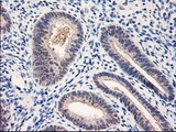 NUBPL Antibody - IHC of paraffin-embedded Human endometrium tissue using anti-NUBPL mouse monoclonal antibody. (Heat-induced epitope retrieval by 10mM citric buffer, pH6.0, 100C for 10min).