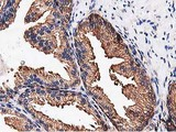 IHC of paraffin-embedded Human prostate tissue using anti-NUDT6 mouse monoclonal antibody.