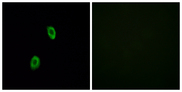 OR1D2 Antibody - Immunofluorescence analysis of HUVEC cells, using OR1D2 Antibody. The picture on the right is blocked with the synthesized peptide.