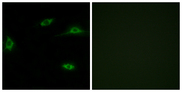 OR2T11 Antibody - Immunofluorescence analysis of LOVO cells, using OR2T11 Antibody. The picture on the right is blocked with the synthesized peptide.
