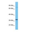 OR4C11 Antibody - Western blot of Human 721_B. OR4C11 antibody dilution 1.0 ug/ml.  This image was taken for the unconjugated form of this product. Other forms have not been tested.