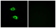 OR51B5 Antibody - Immunofluorescence analysis of LOVO cells, using OR51B5 Antibody. The picture on the right is blocked with the synthesized peptide.