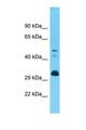 Western blot of Human Fetal Kidney. OR9G1 antibody dilution 1.0 ug/ml.  This image was taken for the unconjugated form of this product. Other forms have not been tested.