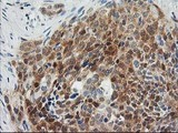 IHC of paraffin-embedded Adenocarcinoma of Human breast tissue using anti-OSBP mouse monoclonal antibody. (Heat-induced epitope retrieval by 10mM citric buffer, pH6.0, 100C for 10min).