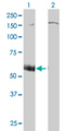 P2RX5 / P2X5 Antibody - Western Blot analysis of P2RX5 expression in transfected 293T cell line by P2RX5 monoclonal antibody (M01), clone 1C5.Lane 1: P2RX5 transfected lysate(46.42 KDa).Lane 2: Non-transfected lysate.
