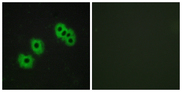 P2RY14 / GPR105 Antibody - Immunofluorescence analysis of MCF7 cells, using GPR105 Antibody. The picture on the right is blocked with the synthesized peptide.