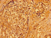 PACSIN3 Antibody - Immunohistochemistry image of paraffin-embedded human breast cancer at a dilution of 1:100