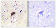 Immunohistochemistry analysis of paraffin-embedded human brain, using PAK1/2/3 (Phospho-Ser144/141/139) Antibody. The picture on the right is blocked with the phospho peptide.