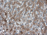 IHC of paraffin-embedded Human liver tissue using anti-PANK2 mouse monoclonal antibody. (Dilution 1:50).