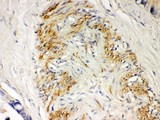Parkin antibody IHC-paraffin: Human Intestinal Cancer Tissue.